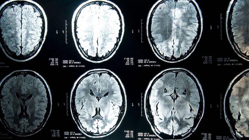 COVID-19, materia gris, cerebro.jpg