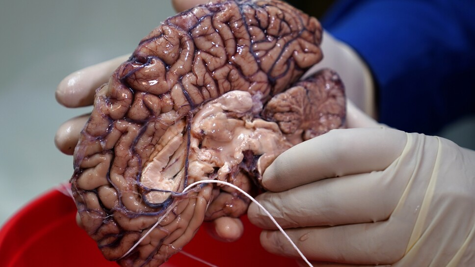 Foto de archivo. El doctor Vahram Haroutunian sostiene un cerebro humano en un banco de cerebros en Nueva York, EEUU. 28 de junio de 2017.