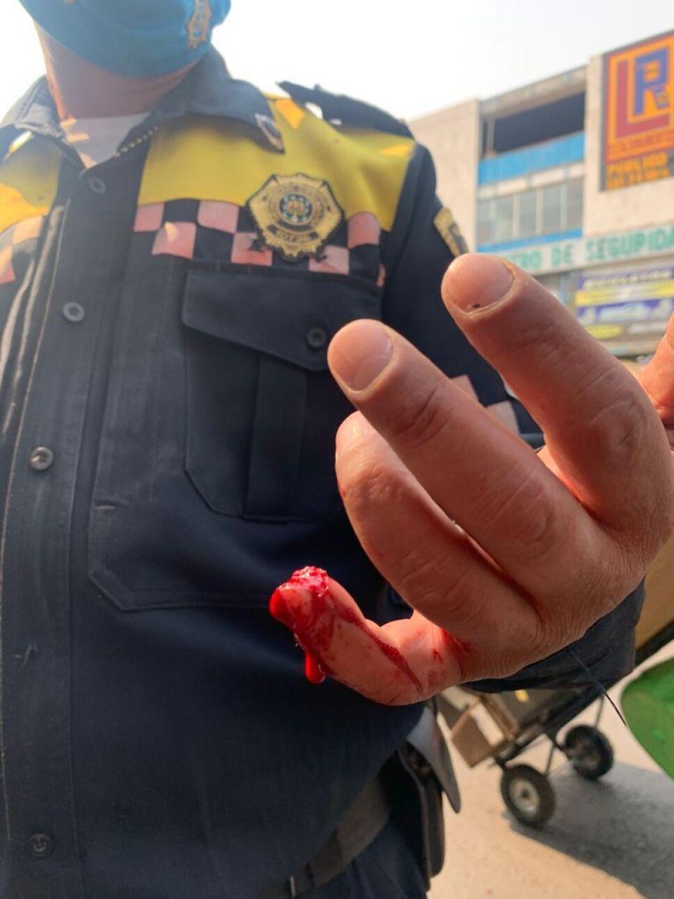Policía agredido