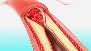 Arterias obstruidas.jpg