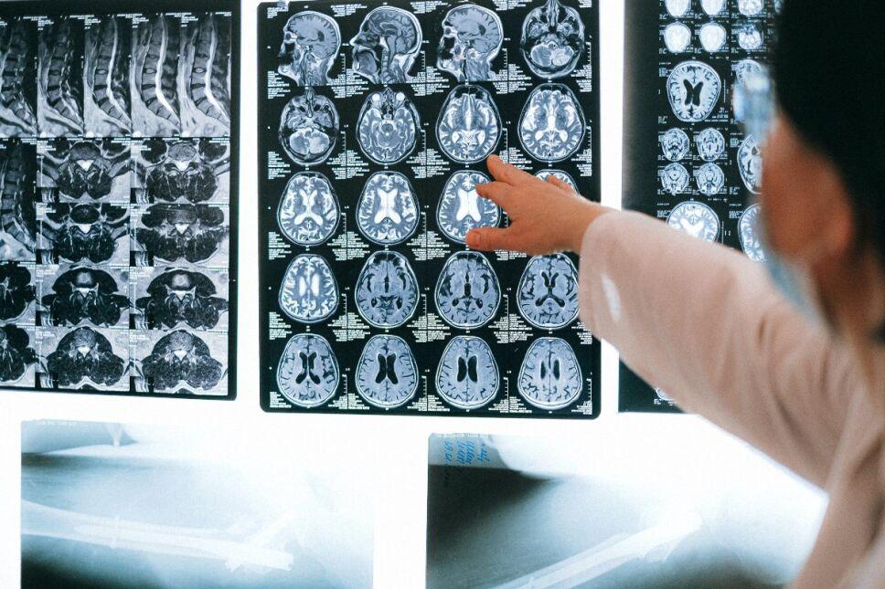 Enfermedades que atacan al cerebro