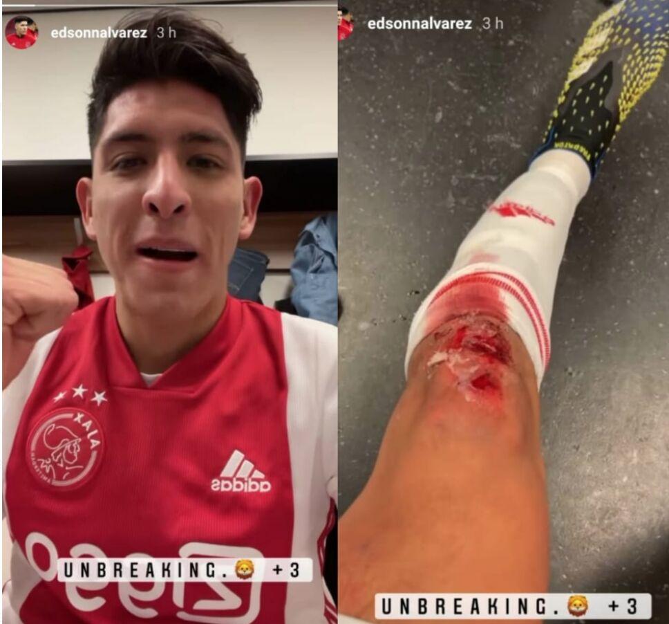 Edson Álvarez y su brutal herida con el Ajax