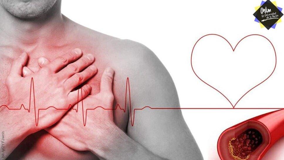 ¿Sabes cómo prevenir un infarto al corazón? La UNAM nos lo dice