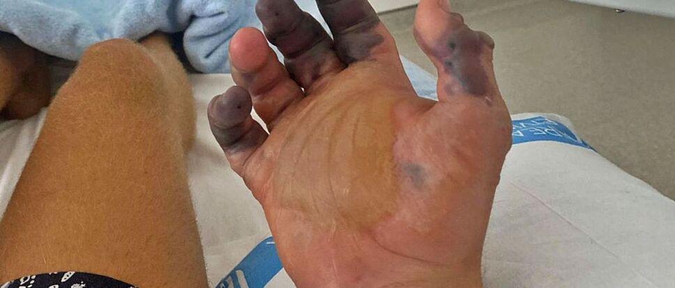dedos afectados por la picadura de araña violinista.jpg