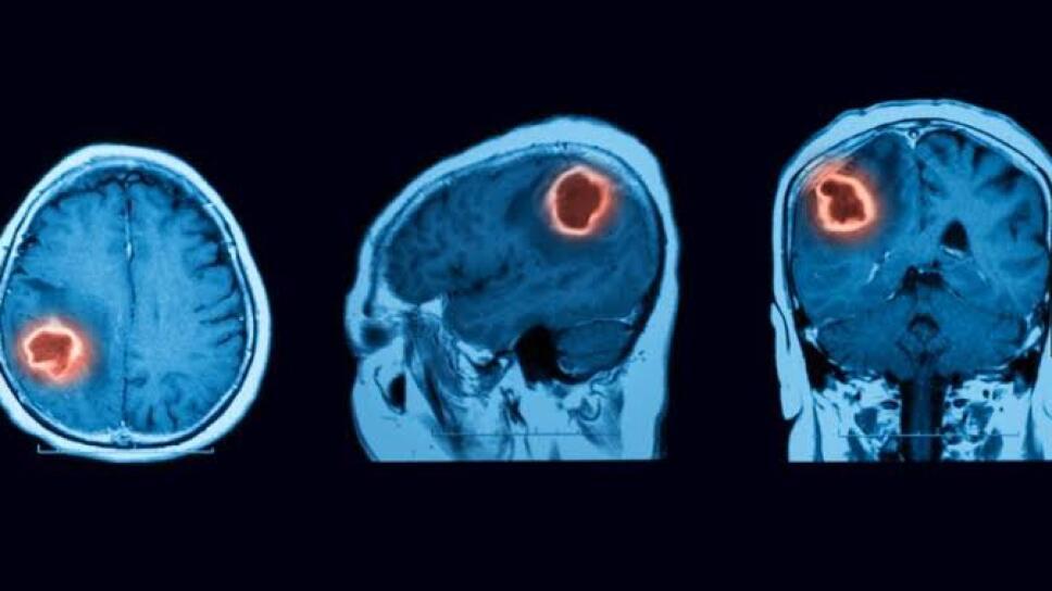 tumores.jpg