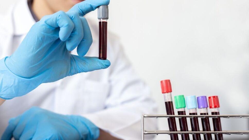 cáncer, análisis de sangre b.jpg