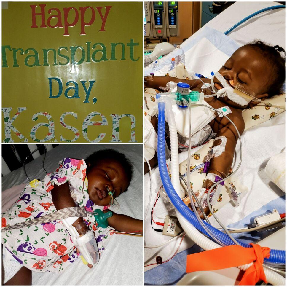 Bebé, COVID-19, transplante 3.jpg