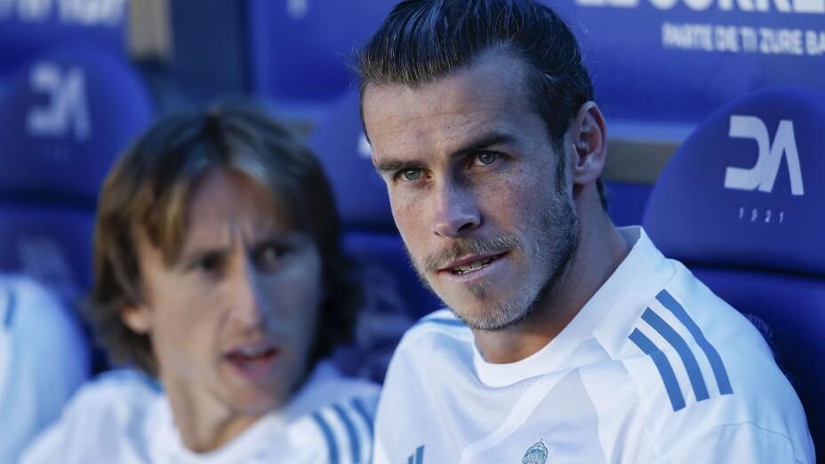 La extraña calvicie de Gareth Bale
