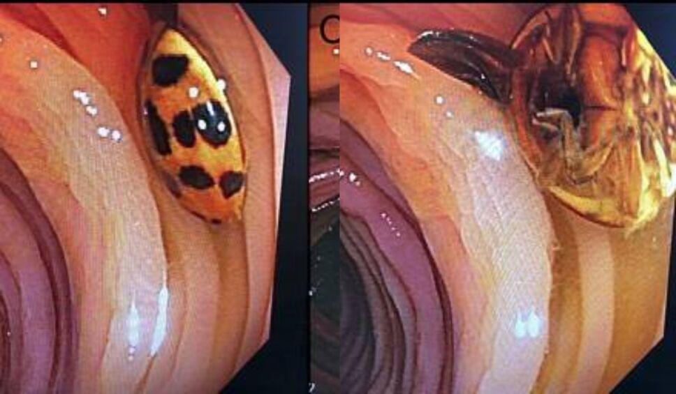 catarina intestino colonoscopia.jpg