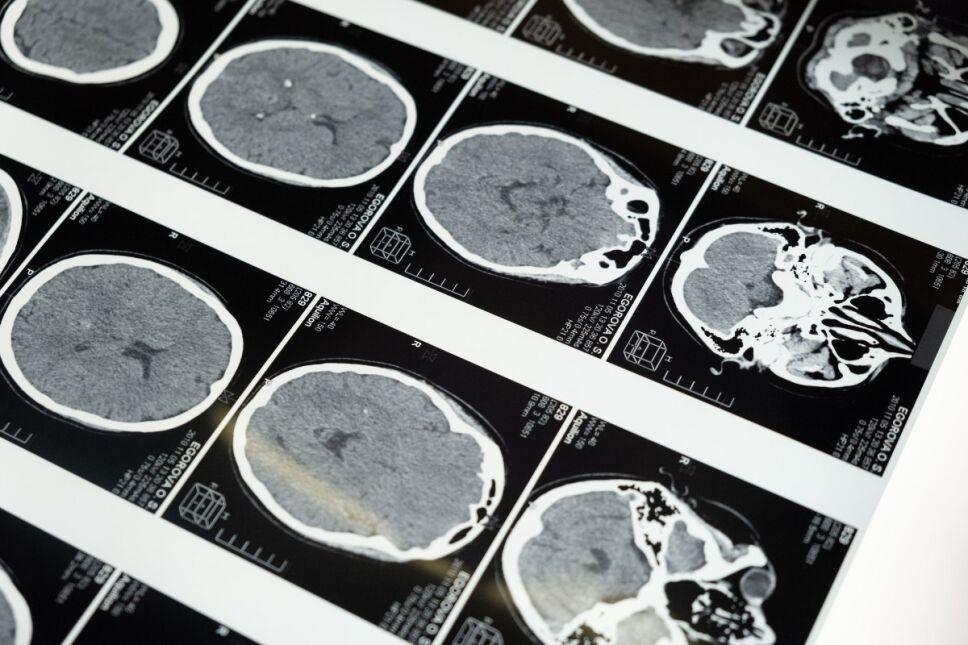 5 enfermedades más comunes y silenciosas que pueden afectar tu cerebro