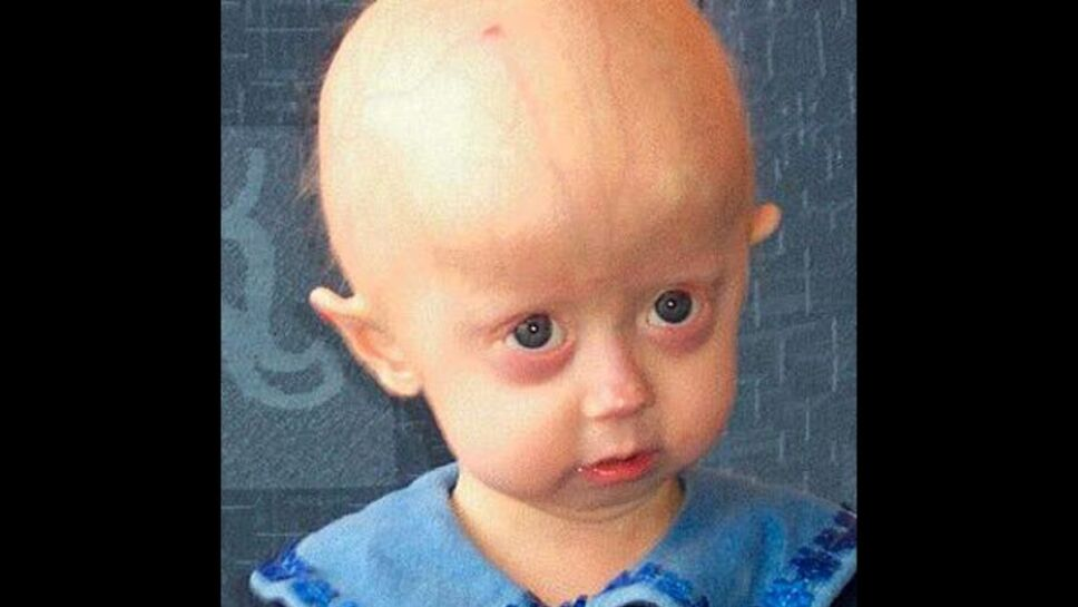 Progeria, joven, anciana c.jpg